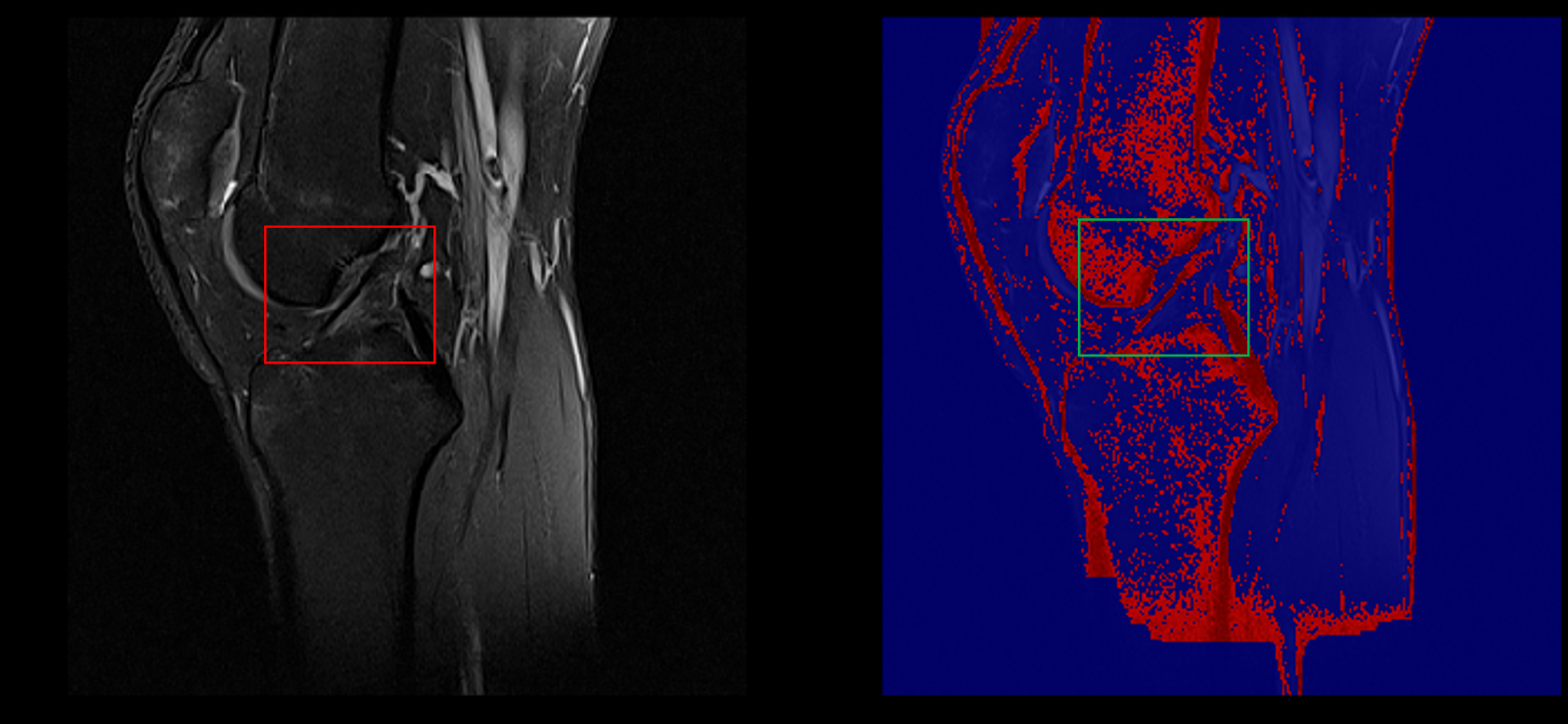 Segmentation Example (Healthy ACL)
