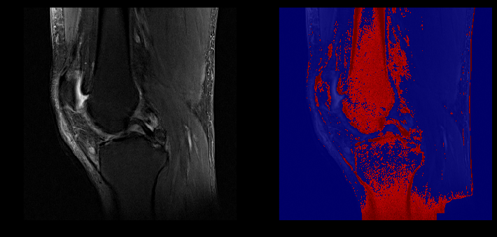Segmentation Example (Unhealthy ACL)